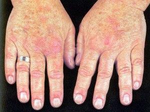 dermatomioz3